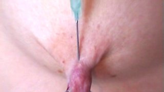 Extreme Huge Insertions and Fisting Anal and Pussy